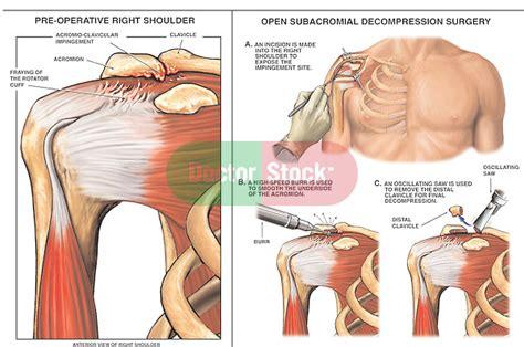 Right Shoulder Impingement Syndrome with Surgical